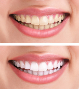 healthy teeth and smile